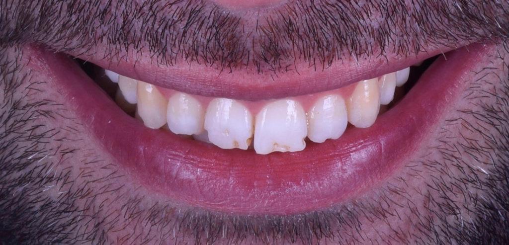 Ortodoncia invisible antes